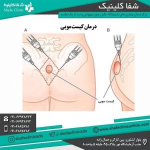 درمان کیست مویی